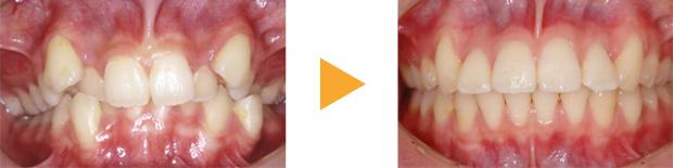 矯正歯科サンプル